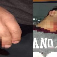 Le cortaron el cuello y fracturaron la mano a un colectivero para robarle el mismo día que la línea implementó cámaras de seguridad
