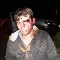 """Denuncian que joven fue golpeado brutalmente por policías: """"el abuso de autoridad va cansando"""""""