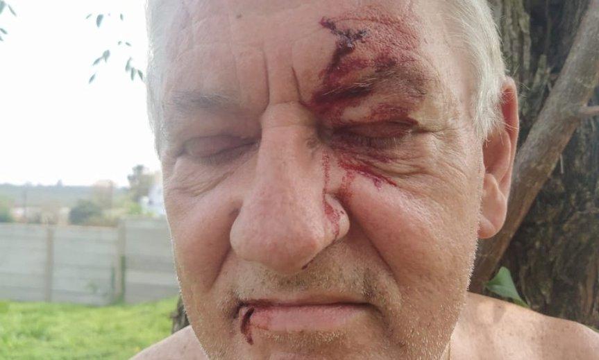 Una familia fue agredida por personas que usurparon suterreno